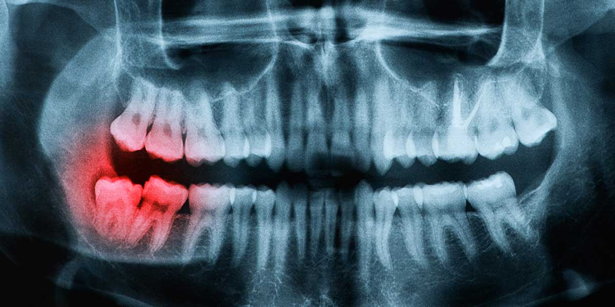 Wisdom Tooth Removal (3rd Molars)